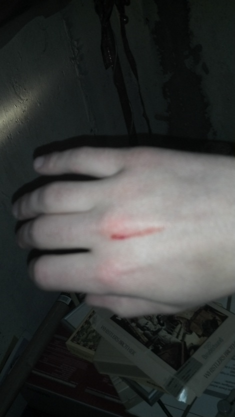 My hand with a scratch on it and a bit of blood